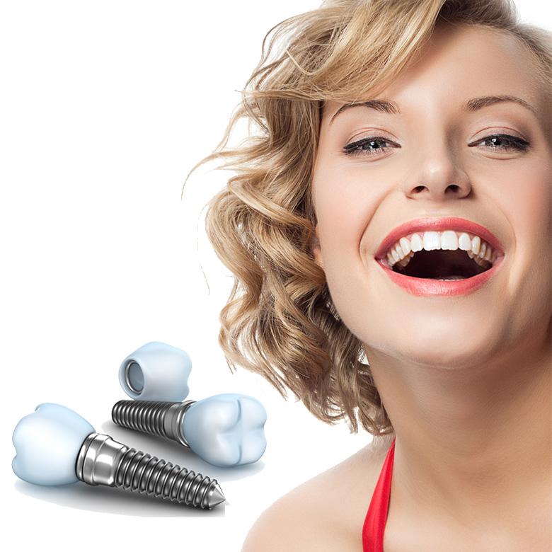Alege cel mai bun implant dentar pentru tine! 1