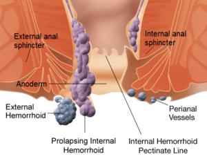 Sfaturi medicale despre hemoroizi 1