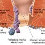 anatomie hemoroizi