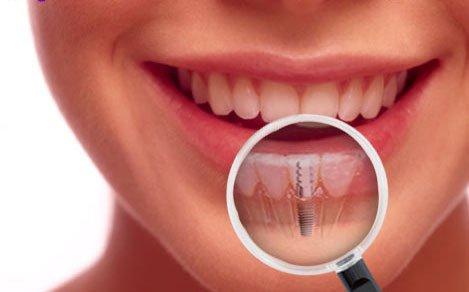 implanturi dentare dr Leahu
