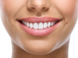 Avantaje si dezavantaje fatete dentare 3