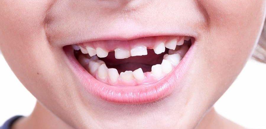 Implicatiile pierderii premature a dintilor de lapte 1